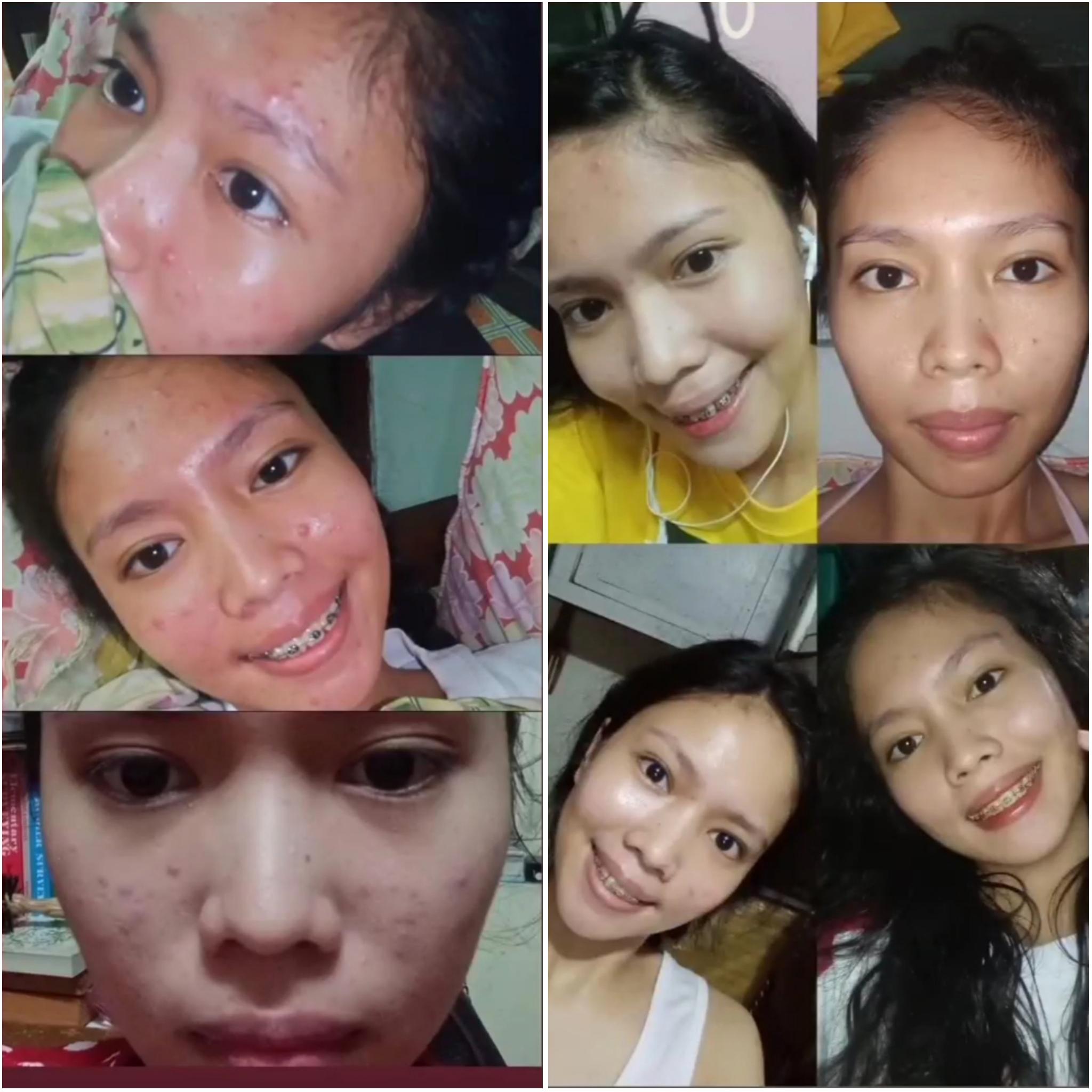 @abelynn_acne_before_after_ problem skin