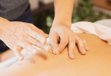Spotlight on Acupuncture